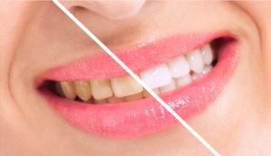 teeth whitening smile makeover